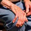 IMSS trata el Parkinson con neuroestimulación